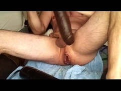 massive DP prolapse